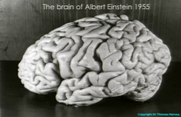 Einstein_brain_-_T.Harvey